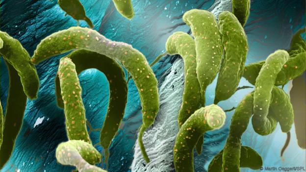 Caulobacter crescentus is distinctly sticky (Credit: Martin Oeggerli/SPL)