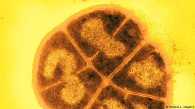 Deinococcus radiodurans can withstand lethal radiation (Credit: Michael J. Daly/SPL)