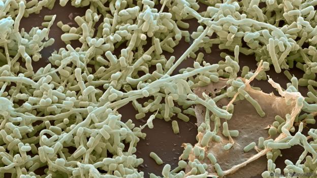 Streptomyces bacteria live in the soil (Credit: Eye of Science/SPL)