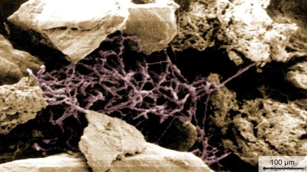 Streptomyces bacteria living among soil particles (Credit: Hildgund Schrempf)